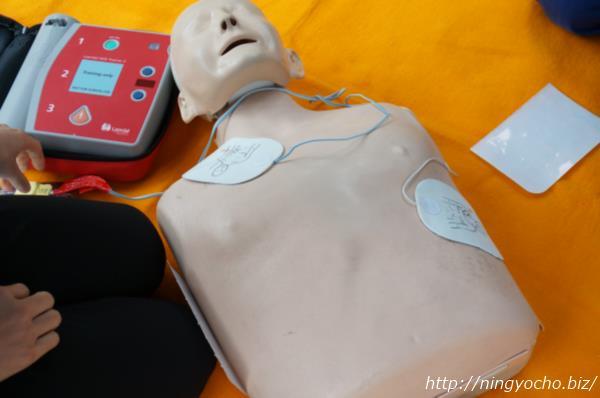 てんてん祭AEDの体験コーナー電極パッドの設置場所画像